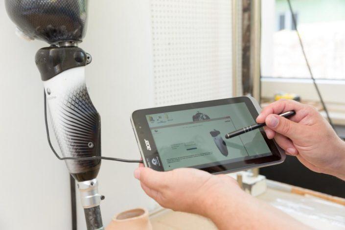 Sanitätshaus Götzen Leistungen Orthesen Prothesen Technik